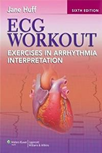 Download ECG Workout: Exercises in Arrhythmia Interpretation (Huff, ECG Workout) ePub